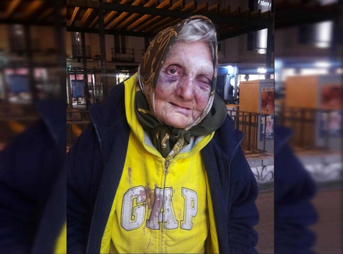 Golpean anciana sin hogar hasta dejarla inconsciente — España