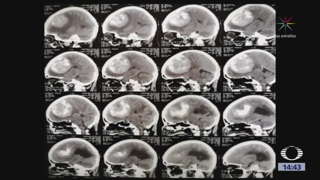 Enorme tumor cerebral es extirpado con éxito