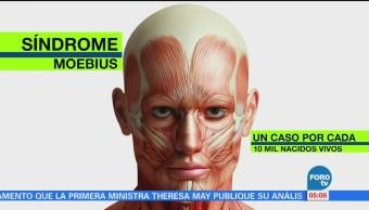 Qué Síndrome Moebius Padecimiento Neurológico