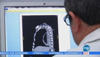 Aumentan las muertes por cáncer de próstata y riñón en México