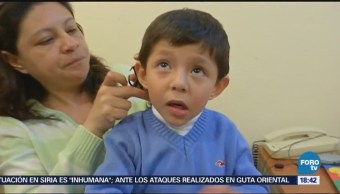 Implantes para niños sordos