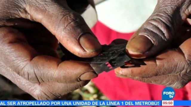 La mutilación genital femenina es un ritual que atenta contra la vida sexual de la mujer; más de 20 países continúan con esta práctica