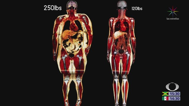 Alerta Fao Obesidad Desnutrición Último Informe