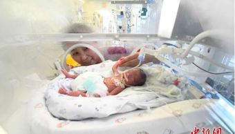 Dan de alta a bebé del tamaño de una mano en China