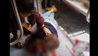 Mujer de la tercera edad resulta herida por pedrada en el Metro