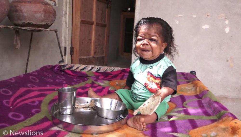 Hombre en la India que vive atrapado en el cuerpo de un bebe