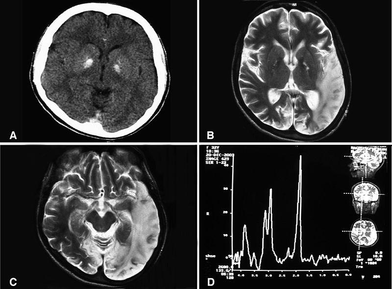 imagen-tomografia-cerebro-craneo-caso-mujer-caso-clinico