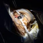 Melanoma Ocular Cáncer Padecimiento Tipo Expertos