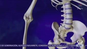 Osteoporosis es más frecuente en habitantes del centro y sur de México
