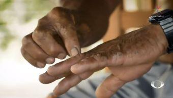 por contaminacion repuntan enfermedades pobladores los bitzales tabasco