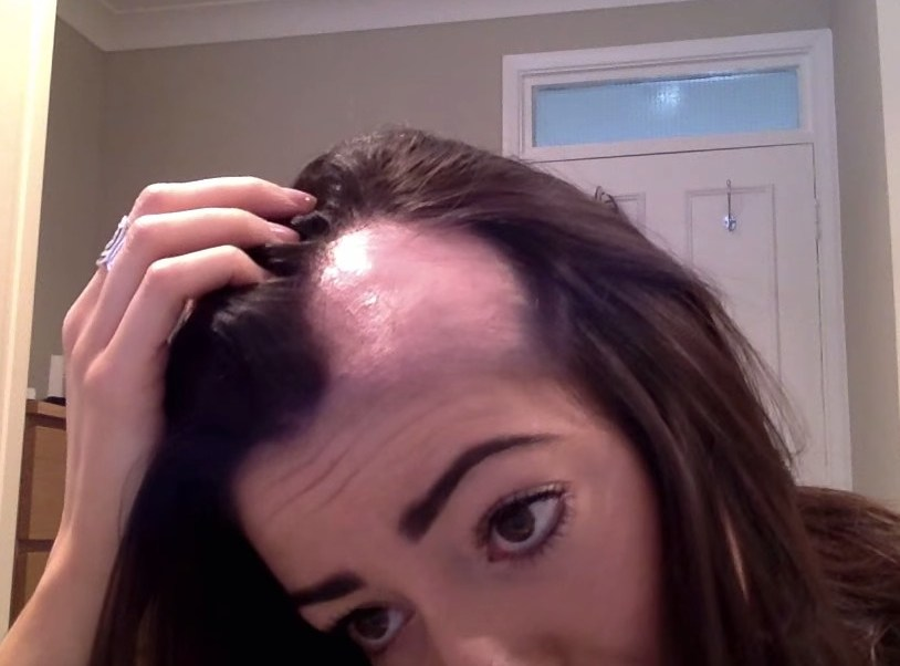 imagen-ilustrativa-descubren-tratamiento-efectivo-alopecia-areata-salud-femenina