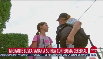 Mujer migrante busca sanar a su hija con edema cerebral