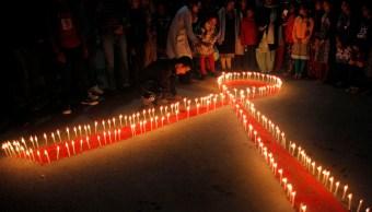 SIDA Síntomas Signos Cuadro Clínico VIH
