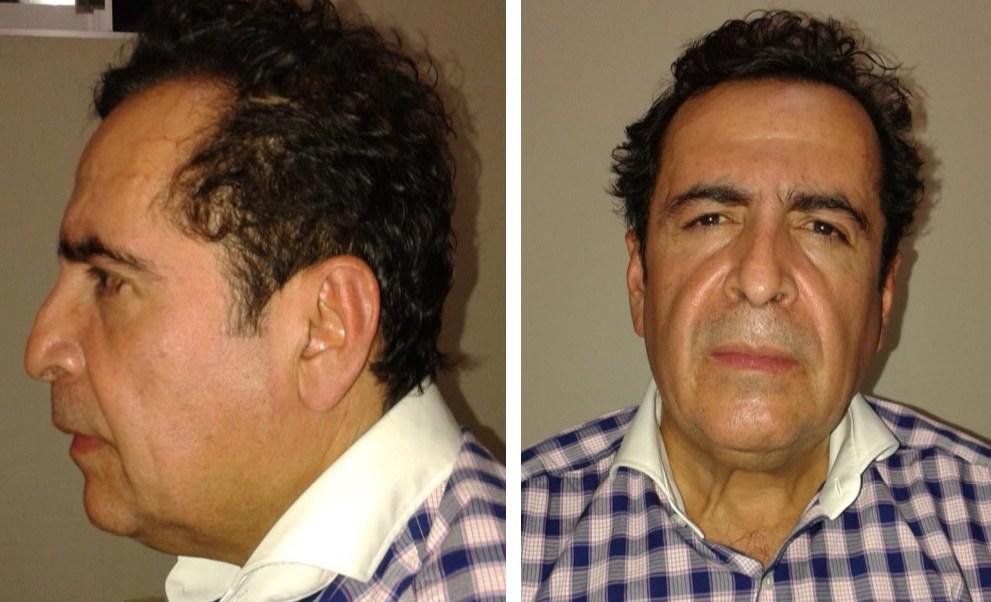 Estrés por extradición pudo ocasionó infarto a Beltrán Leyva