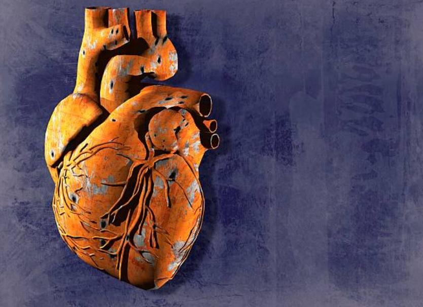 Seis causas que no sabíamos que pueden provocar un infarto
