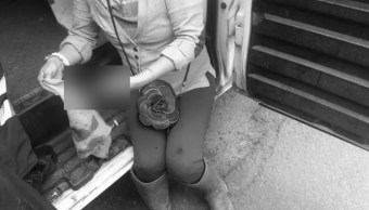 Ladrón muerde y arranca dedo a víctima de asalto en CDMX