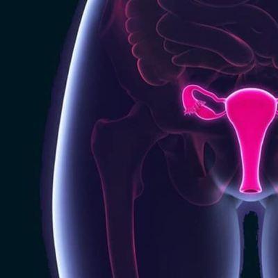 Mujeres mexicanas se exponen al virus del Papiloma Humano a edades tempranas