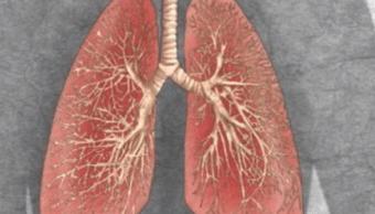 IMAGEN Autotrasplante pulmonar salva vida a niña de 10 años (AP archivo 1993