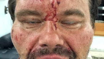 Foto: Tomasz Surdel, periodista polaco del diario Gazeta Wyborcza, fue agredido a golpes en calles de Caracas, Venezuela. El 15 de marzo del 2019