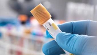 VIH: Después del 'Paciente de Berlín', anuncian segundo caso curado de VIH en el mundo