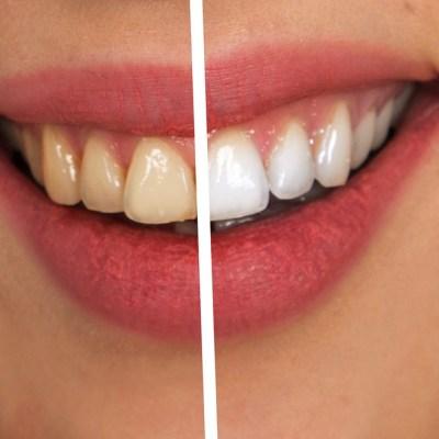 Estos son los riesgos de blanquear tus dientes con carbón activado