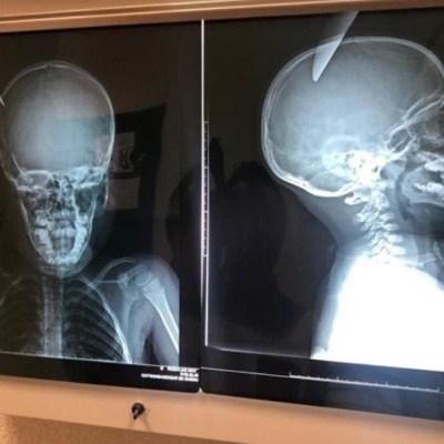 Niño clava cuchillo en la cabeza de otro menor mientras jugaban