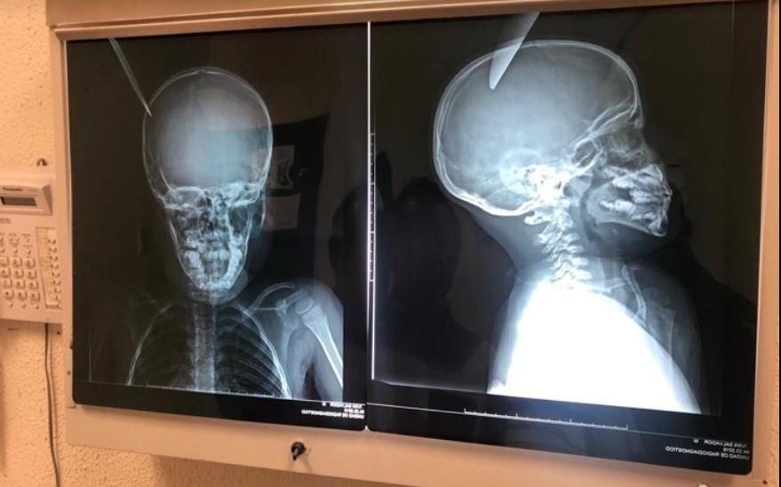 Foto: Radiografía del menor apuñalado en la cabeza. El 24 de abril de 2019