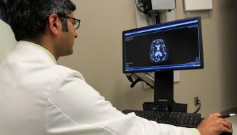 implante-cerebral-Leer-pensamientos-sin-capacidad-habla-personas-mudas