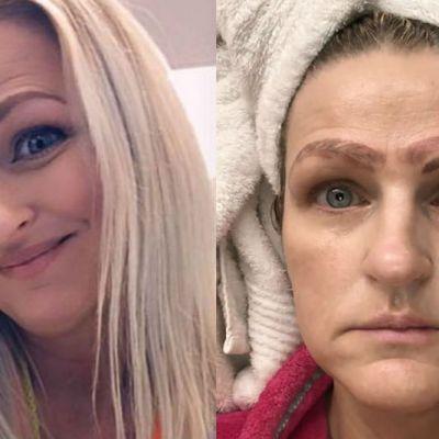 Tratamiento de belleza la dejó con cuatro cejas