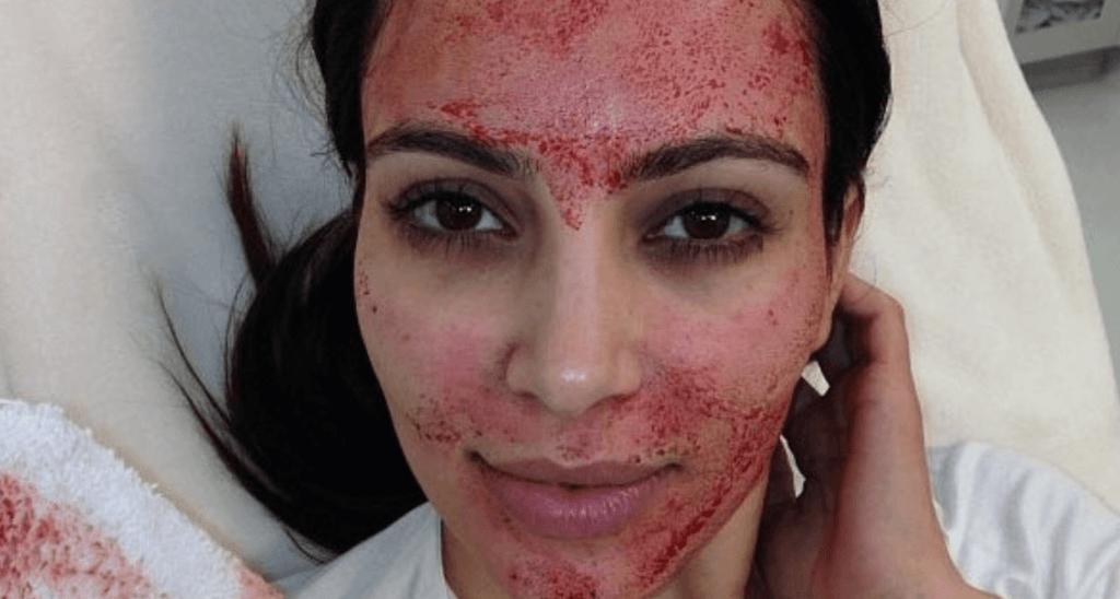 Casos de VIH en Nuevo Mexico, por 'facial vampiro'