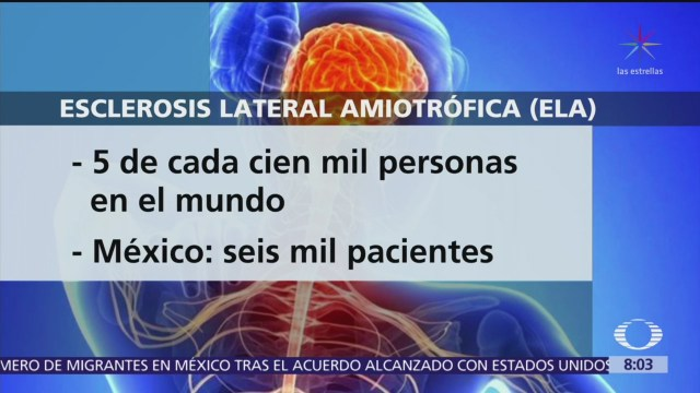 Esclerosis Lateral Amiotrófica afecta a 5 de cada 100 mil personas