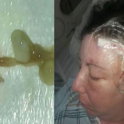 Mujer vivía con un gusano en el cerebro