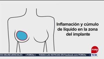 Foto: Cáncer asociado implantes mamarios