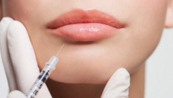 labios inyectados