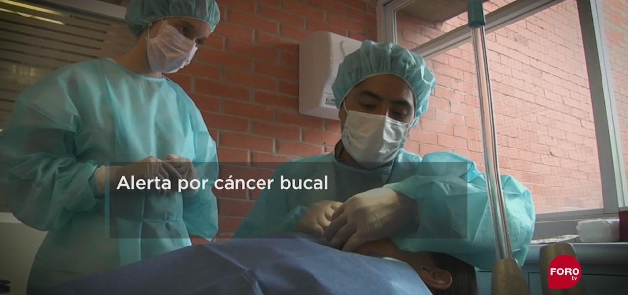 FOTO: Agresividad del cáncer de boca, 15 Septiembre 2019