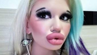 Foto: Andrea Emilova joven 15 cirugias labios. 23 Septiembre 2019