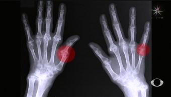 Foto: Deformación Dedos Texteo Excesivo Celular Uso 8 Octubre 2019