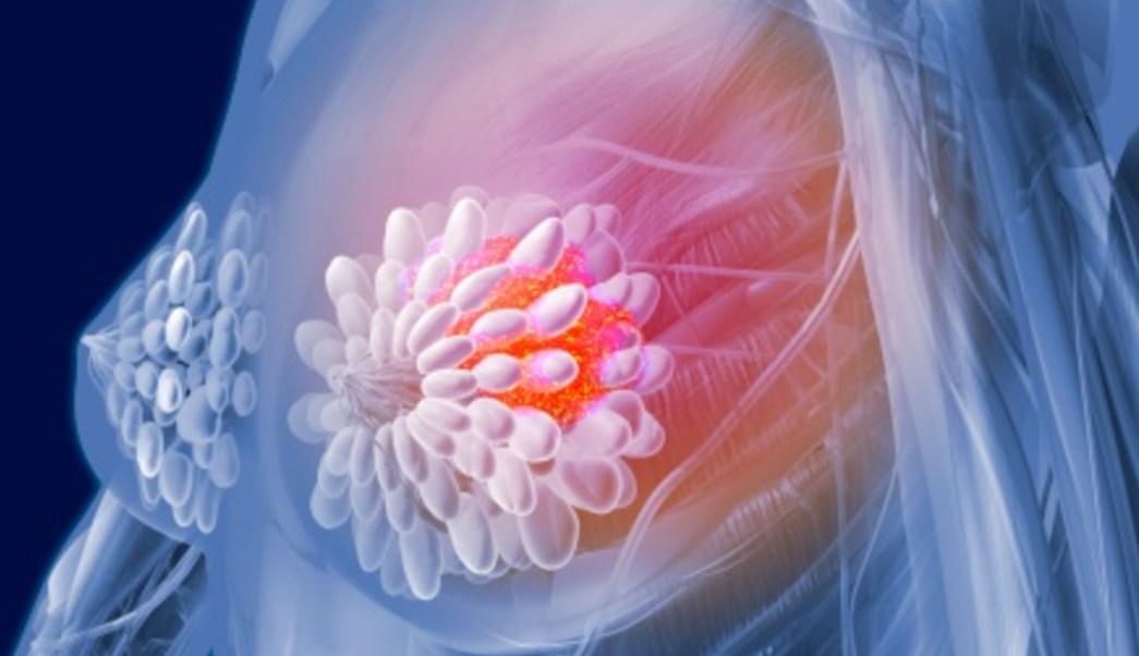 Foto: El cáncer de mama es una de las principales causas de muerte en mujeres, 11 de octubre de 2019, (Getty Images, archivo)
