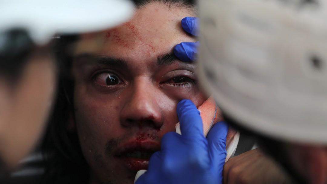 Foto: Más de 200 lesionados en los ojos por balines de policías en Chile