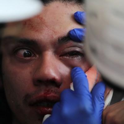 Más de 200 lesionados en los ojos por balines de policías en Chile