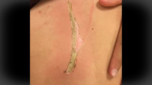 FOTO Niña se electrocuta por celular que cae a la tina, casi muere (Daily Mail)