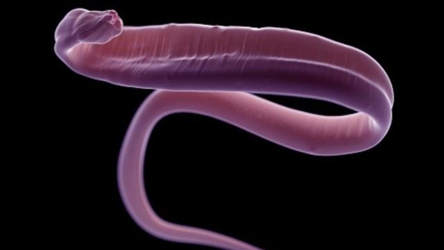 """Imagen: El doctor Gu Youming comentó que """"Debido a que el gusano estaba vivo, se habría arrastrado dentro de su cerebro y se lo habría comido"""", 6 de noviembre de 2019 (Getty Images, archivo)"""