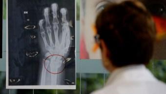 Radiografías de mujeres maltratadas