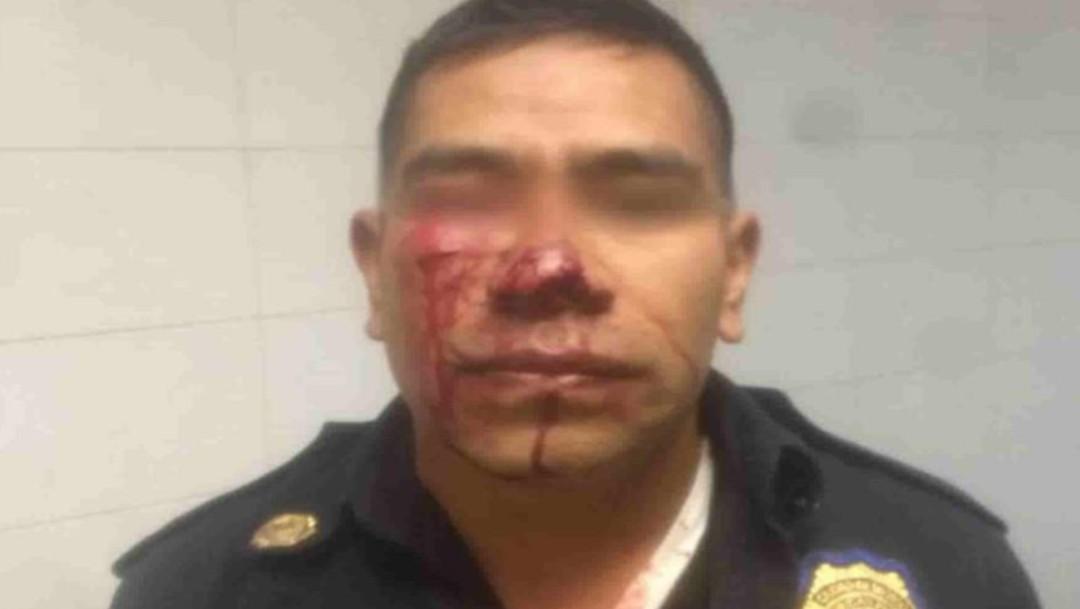 El oficial fue diagnosticado por paramédicos con amputación del ala nasal izquierda. (Twitter)