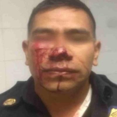 Foto: Joven muerde nariz a policía del Metro que le prohibió orinar en vía pública