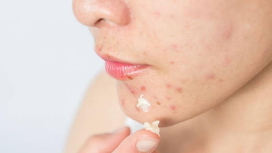 Remedios caseros agravan cuadro de acné, dice especialista