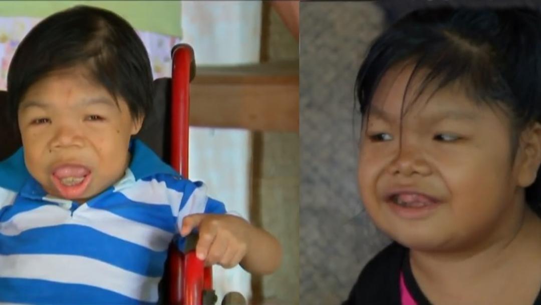 Foto: A los jóvenes Gilberto y Hermila les fue diagnosticado hipotiroidismo congénito en Veracruz, 28 febrero 2020