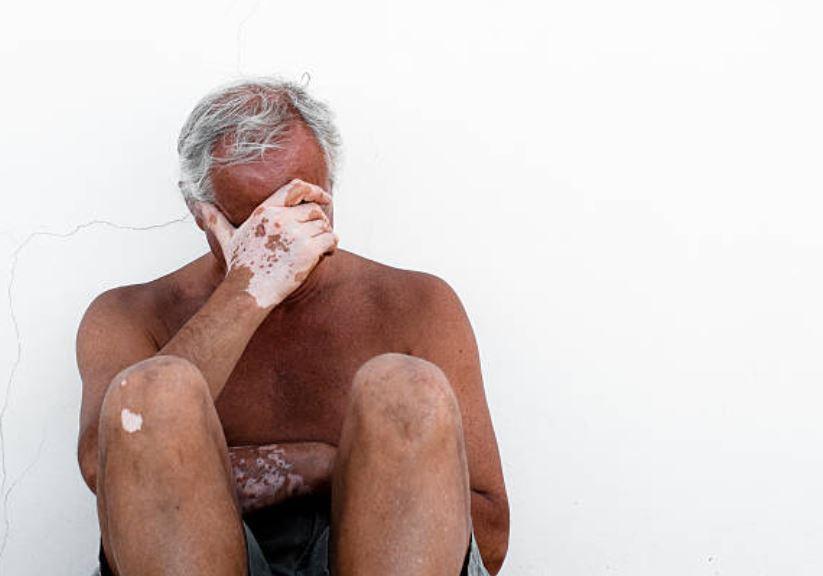 ¿Qué es y por qué se produce el Vitiligo?