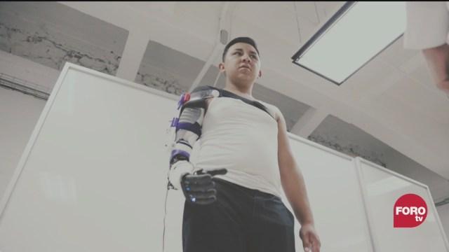 FOTO: 22 marzo 2020, brazos roboticos