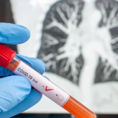 Sinaloa suma tres muertes por coronavirus, Veracruz, una; Coahuila, 10 nuevos casos